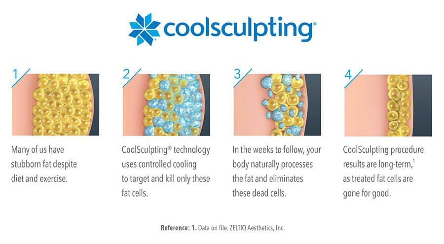 CoolSculpting Diagram